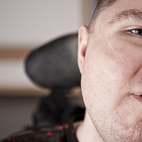 Disability photography: Changing the world one photograph at a time