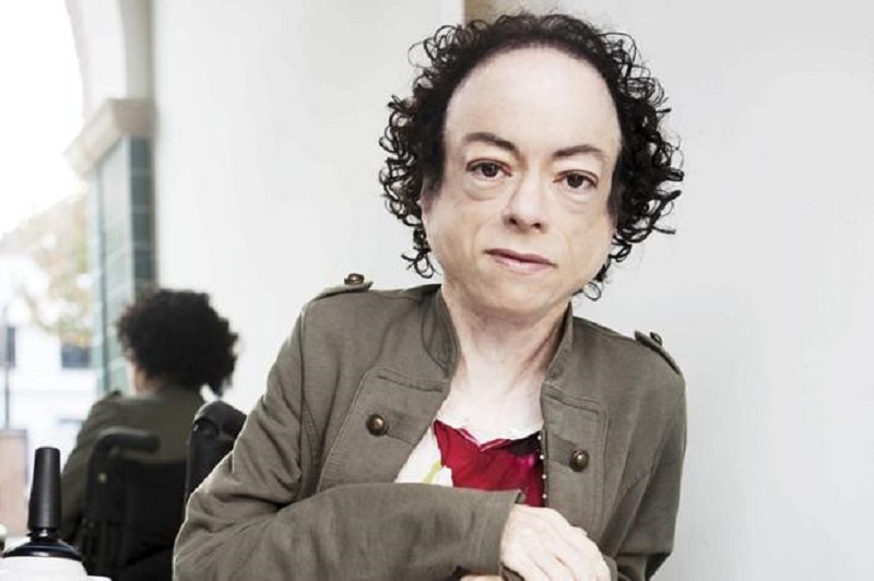 Disabled actress Liz Carr