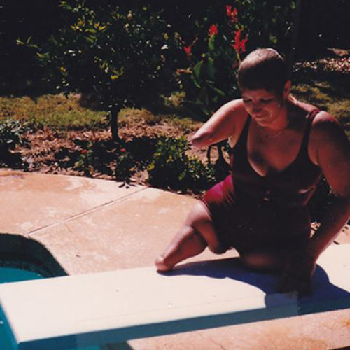 My Extraordinary Life: an amputee's story of inspiration