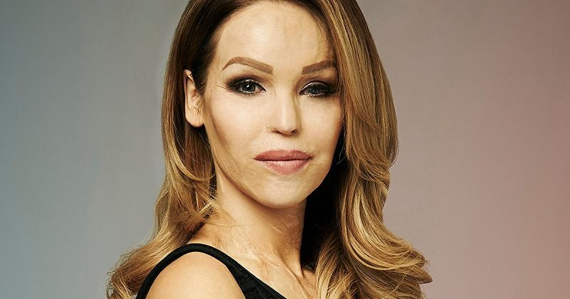 Disabled celebrity Katie Piper