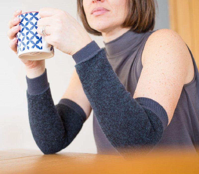 Woman wearing DermaTuff black sleeves to protect thin skin