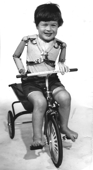 Disabled artist Tom Yendell as a child wearing gas-powered artificial limbs