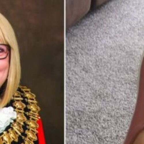 Mayor with prosthetic leg faced online abuse over wearing flat shoes