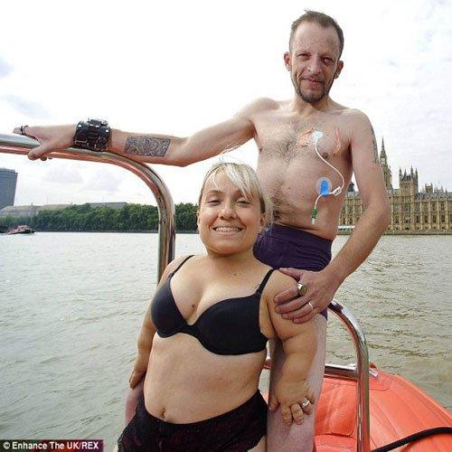 Undressing disability Enhance UK