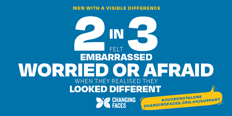 Changing Faces infographic saying 2 in 3 men with a visible difference feel embarrassed, worried or afraid