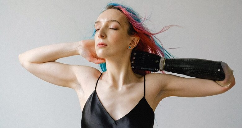 Woman wearing a black silk strap top with pink and blue hair and a prosthetic arm