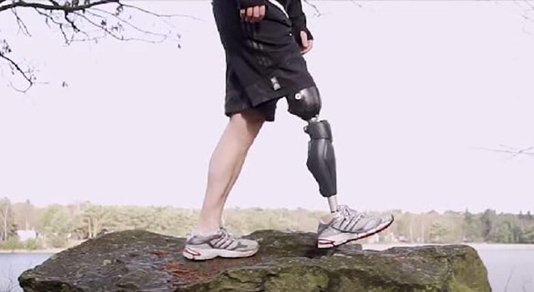 Photo of A complete guide to bionic legs and feet