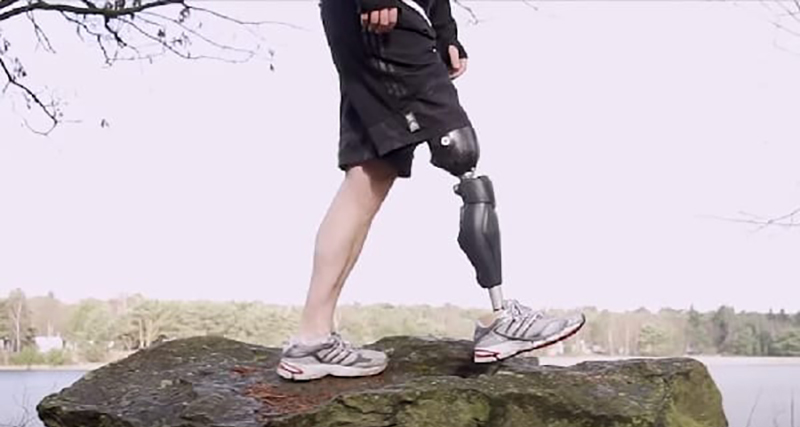Bionic Legs and Feet Standing on a rock
