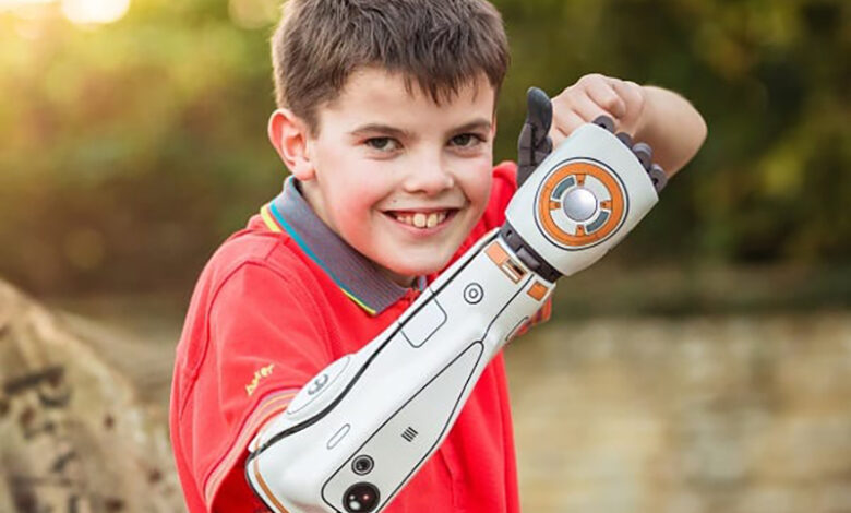Photo of A complete guide to bionic arms and hands