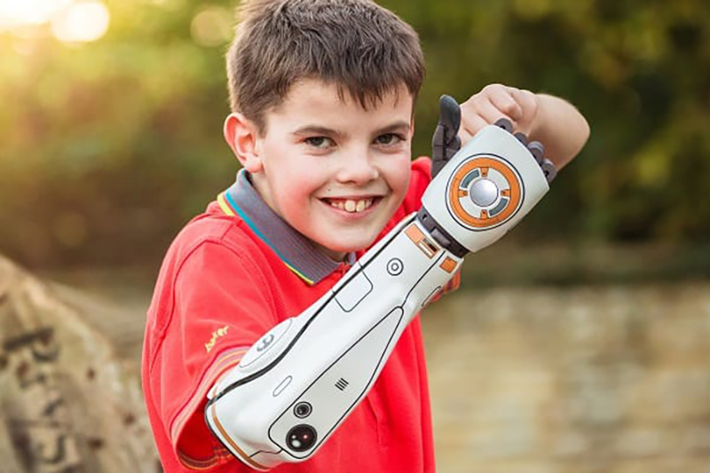 Child with a white bionic arm