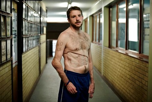 JJ Chalmers with his top off showing his injuries