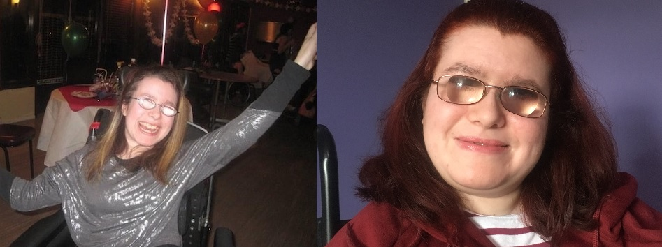 Two images of Emma Purcell - on the left 10 years ago at a party wearing a silver top and now a close up wearing a red hoodie
