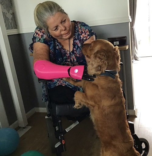 Susan Neil in her wheelchair with a pink Open Bionics prosthetic arm hugging and stroking her dog